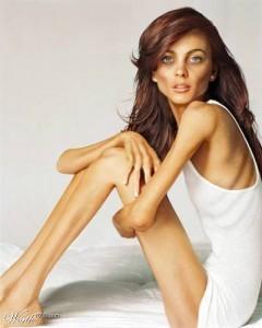 Desórdenes alimenticios:  La anorexia