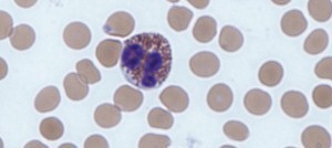 Eosinófilos bajos y sus causas