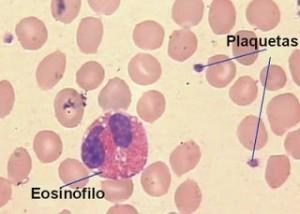Eosinofilo