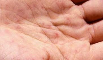 La aparición de las manchas blancas de pigmento en las manos