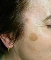 Las manchas blancas de pigmento por el cuerpo en la piel
