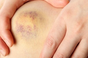 Bruised knee of a woman